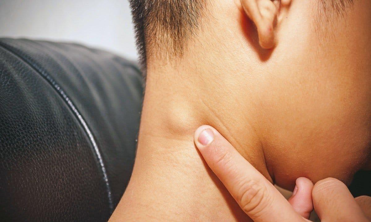 Swollen Lymph Nodes: Symptoms, Causes and Diagnosis | Nestia